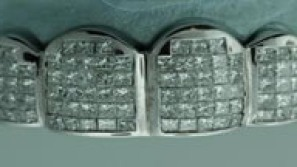 The Most Expensive $8,000 Teeth Set